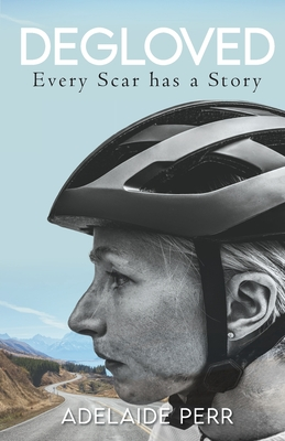 Degloved: Every Scar has a Story Cover Image