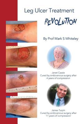 Leg Ulcer Treatment Revolution Cover Image