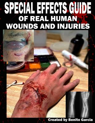 Special Effects Guide Of Real Human Wounds and Injuries: Special Effects Guide Of Real Human Wounds and Injuries Cover Image