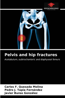 Pelvis and hip fractures Cover Image