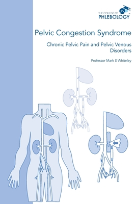 Pelvic Congestion Syndrome - Chronic Pelvic Pain and Pelvic Venous Disorders Cover Image