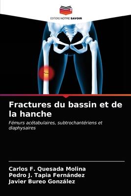 Fractures du bassin et de la hanche Cover Image