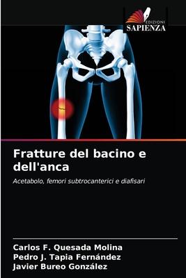 Fratture del bacino e dell'anca Cover Image
