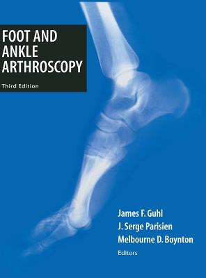 Foot and Ankle Arthroscopy Cover Image