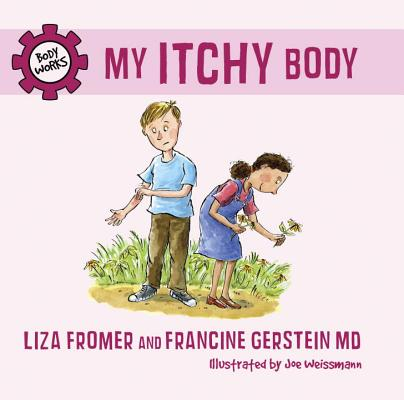 My Itchy Body (Body Works) Cover Image