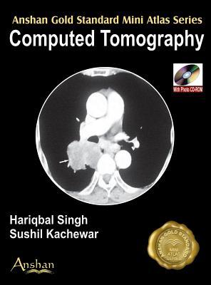 Mini Atlas Computed Tomography [With Mini CDROM] (Anshan Gold Standard Mini Atlas) Cover Image
