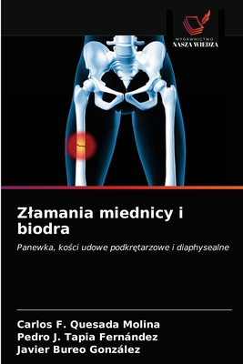 Zlamania miednicy i biodra Cover Image