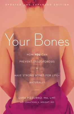 Your Bones: How You Can Prevent Osteoporosis & Have Strong Bones for Life - Naturally Cover Image