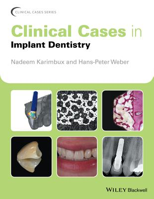 Clinical Cases in Implant Dentistry (Clinical Cases (Dentistry)) Cover Image