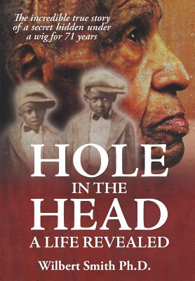 Hole in the Head: A Life Revealed Cover Image
