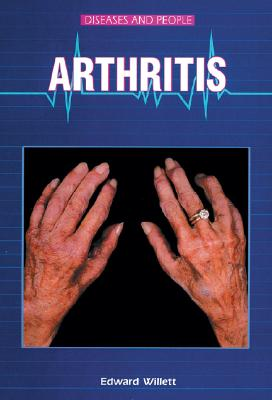 Arthritis (Diseases and People) Cover Image