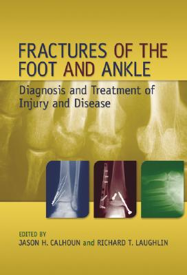 Fractures of the Foot and Ankle: Diagnosis and Treatment of Injury and Disease Cover Image
