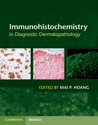 Immunohistochemistry in Diagnostic Dermatopathology Cover Image