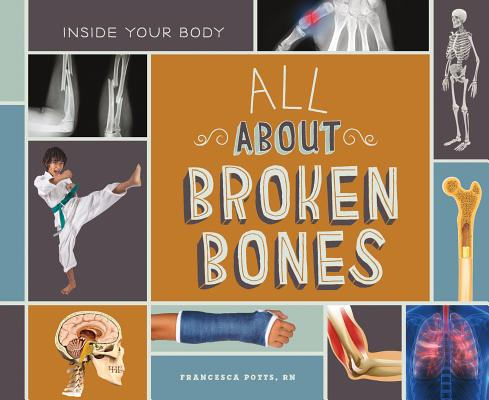 All about Broken Bones (Inside Your Body) Cover Image