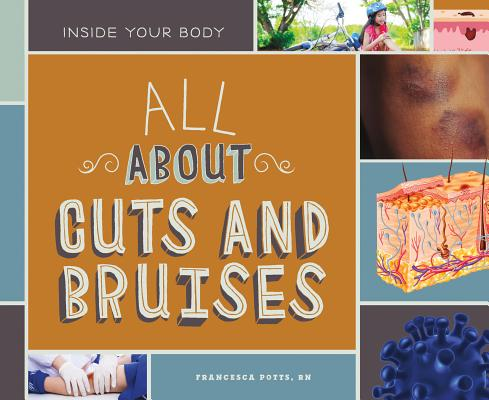 All about Cuts and Bruises (Inside Your Body) Cover Image