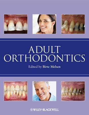 Adult Orthodontics Cover Image