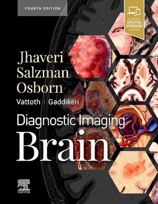 Diagnostic Imaging: Brain Cover Image