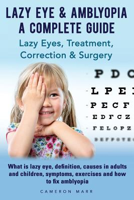 Lazy Eye & Amblyopia. Lazy eyes, treatment, correction and surgery. What is lazy eye, definition, causes in adults and children, symptoms, exercises. Cover Image