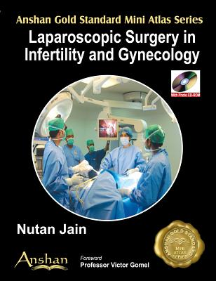 Mini Atlas of Endoscopic Surgery in Infertility and Gynaecology (Anshan Gold Standard Mini Atlas) Cover Image