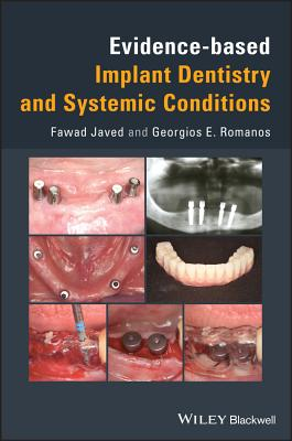 Evidence-Based Implant Dentistry and Systemic Conditions Cover Image