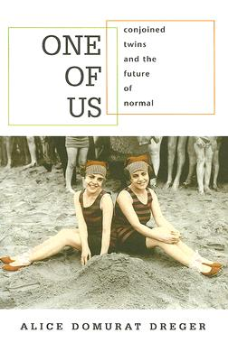 One of Us: Conjoined Twins and the Future of Normal Cover Image