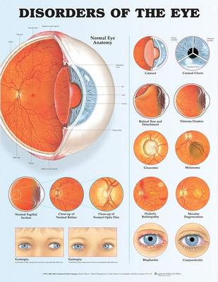 Disorders of the Eye Anatomical Chart Cover Image