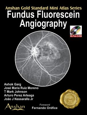Fundus Fluorescein Angiography [With Mini CDROM] (Anshan Gold Standard Mini Atlas) Cover Image
