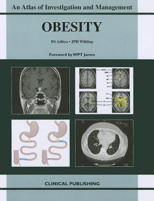 Obesity: An Atlas of Investigation and Management Cover Image