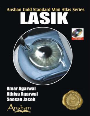 Mini Atlas of Lasik Surgery (Anshan Gold Standard Mini Atlas) Cover Image