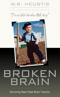 Broken Brain: Surviving Near-Fatal Brain Trauma Cover Image