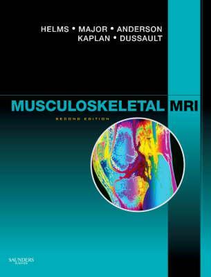 Musculoskeletal MRI Cover Image