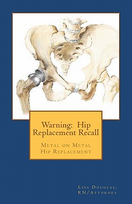 Warning: Hip Replacement Recall: Warning: Hip Replacement Recall Metal on Metal Devices Cover Image