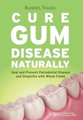 Cure Gum Disease Naturally: Heal Gingivitis and Periodontal Disease with Whole Foods Cover Image