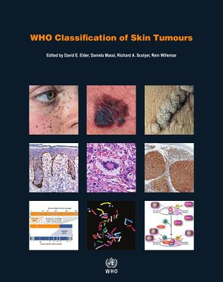 Who Classification of Skin Tumours Cover Image