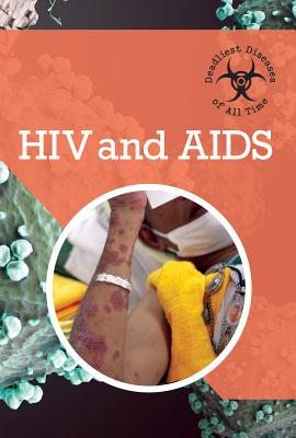 HIV and AIDS (Deadliest Diseases of All Time) Cover Image
