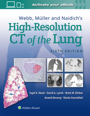 Webb, Müller and Naidich's High-Resolution CT of the Lung Cover Image