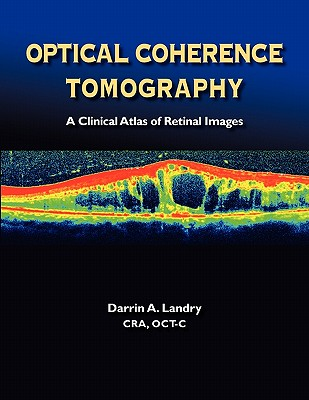 Optical Coherence Tomography a Clinical Atlas of Retinal Images Cover Image