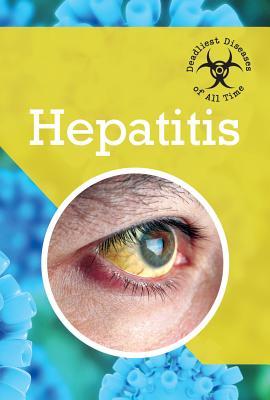 Hepatitis (Deadliest Diseases of All Time) Cover Image