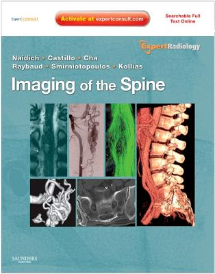 Imaging of the Spine [With Access Code] (Expert Radiology) Cover Image
