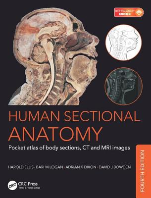 Human Sectional Anatomy: Pocket Atlas of Body Sections, CT and MRI Images, Fourth Edition Cover Image