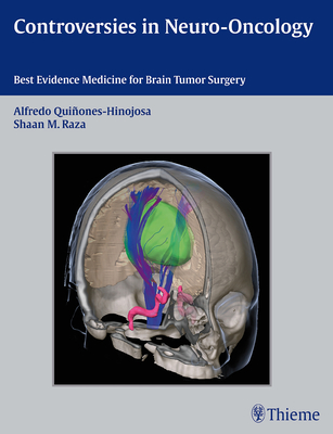 Controversies in Neuro-Oncology: Best Evidence Medicine for Brain Tumor Surgery cover