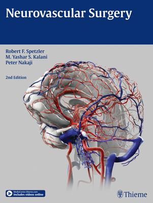Neurovascular Surgery Cover