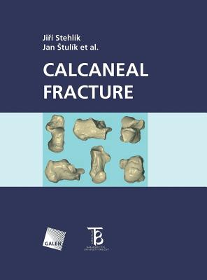 Calcaneal Fracture Cover Image