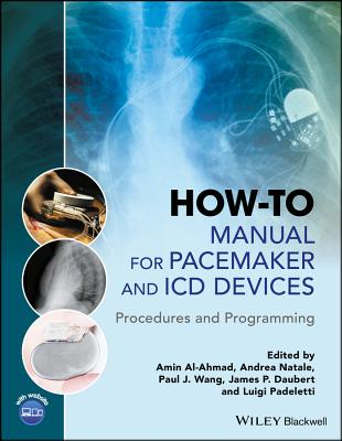 How-To Manual for Pacemaker and ICD Devices: Procedures and Programming Cover Image