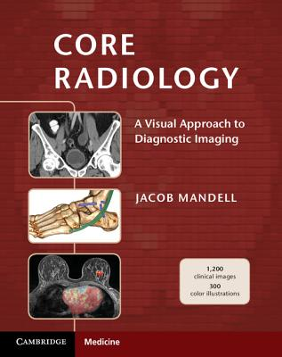 Core Radiology: A Visual Approach to Diagnostic Imaging Cover Image