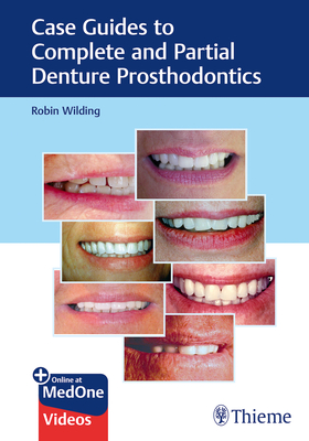 Case Guides to Complete and Partial Denture Prosthodontics Cover Image