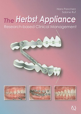 The Herbst Appliance: Research-Based Clinical Management Cover Image