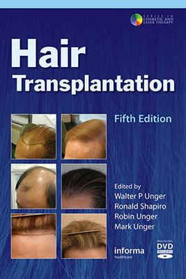Hair Transplantation Cover Image