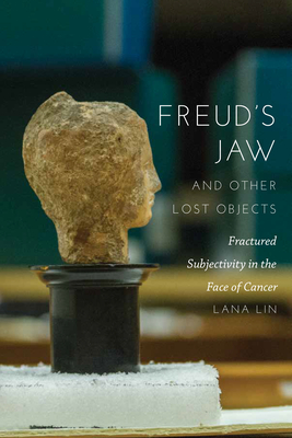Freud's Jaw and Other Lost Objects: Fractured Subjectivity in the Face of Cancer Cover Image
