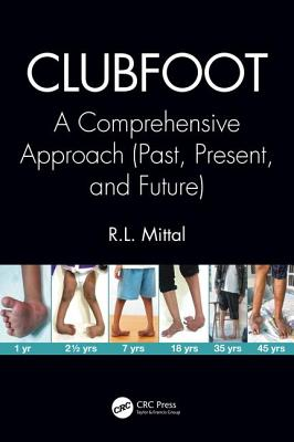 Clubfoot: A Comprehensive Approach (Past, Present, and Future) Cover Image